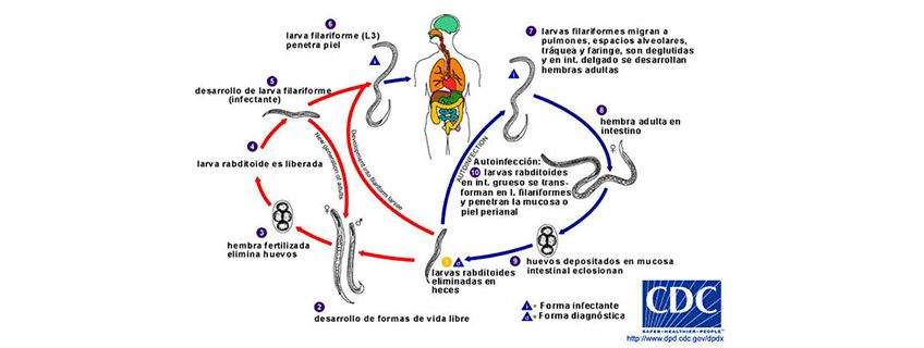 noticia-estrongiloidiasis